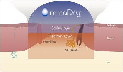 miraDry process 3